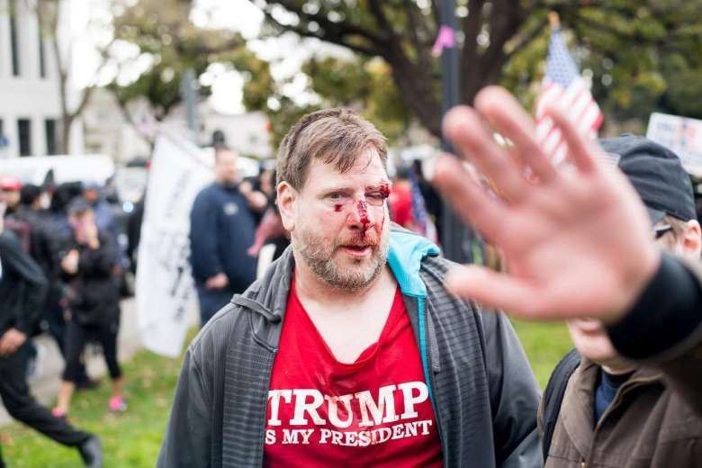 violence-at-berkeley-rally-for-trump-3